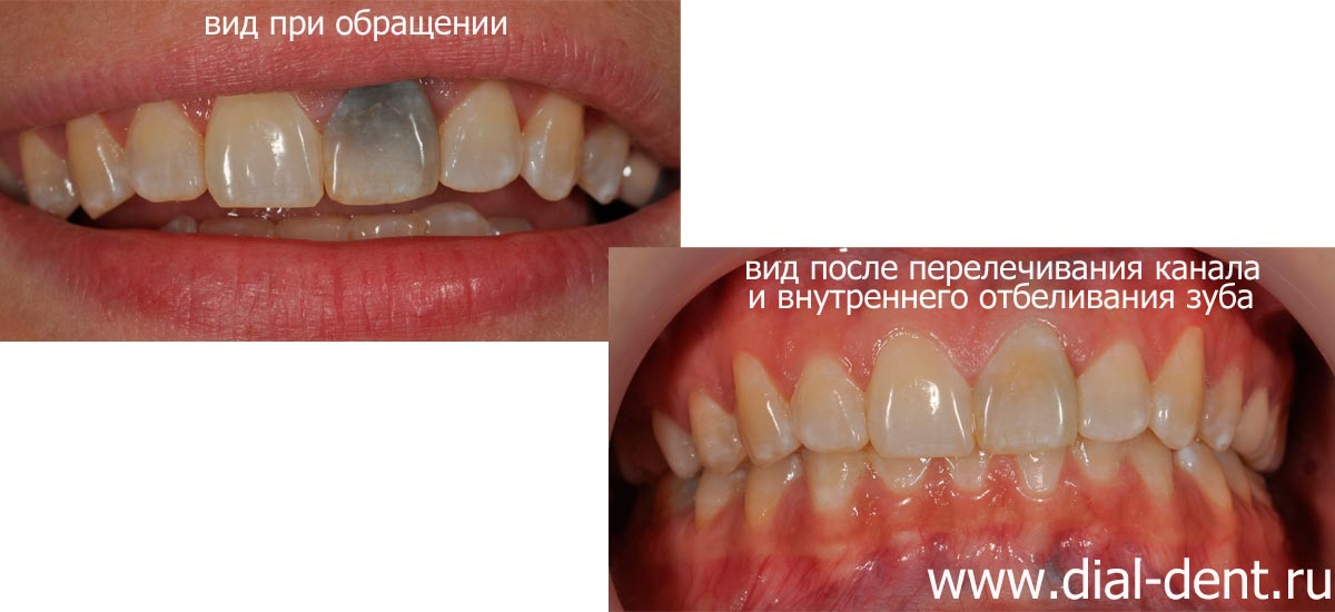 Потемнел зуб без нерва что делать