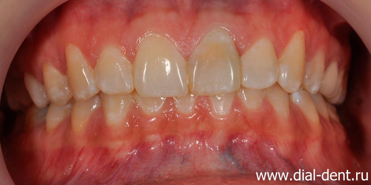 отбеливание зубов изнутри
