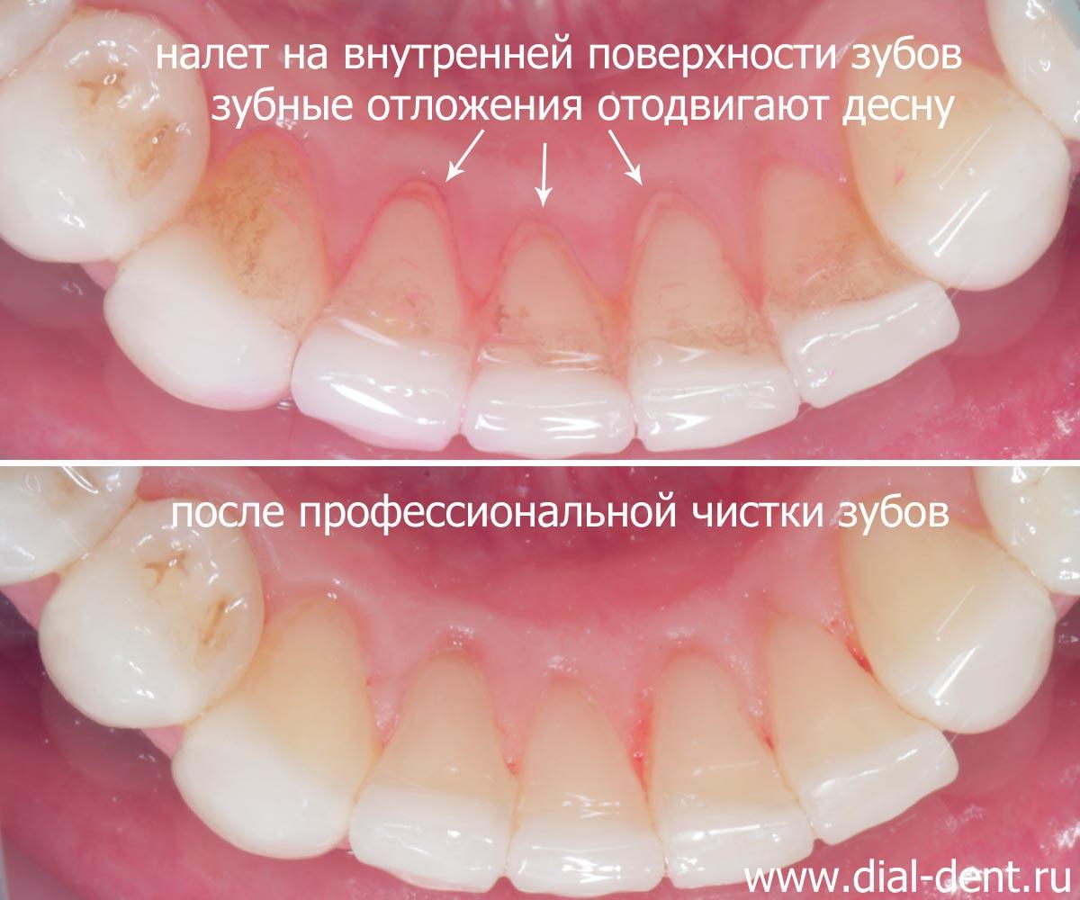 отбеливание зубов москва отзывы