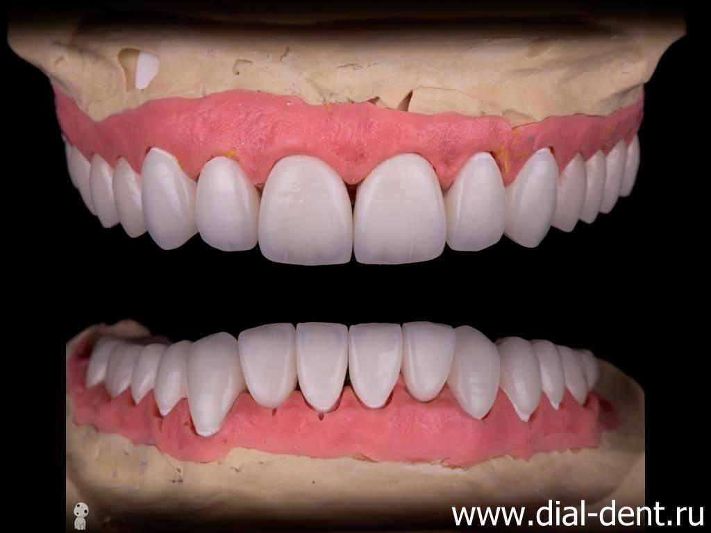 обточенные зубы под виниры