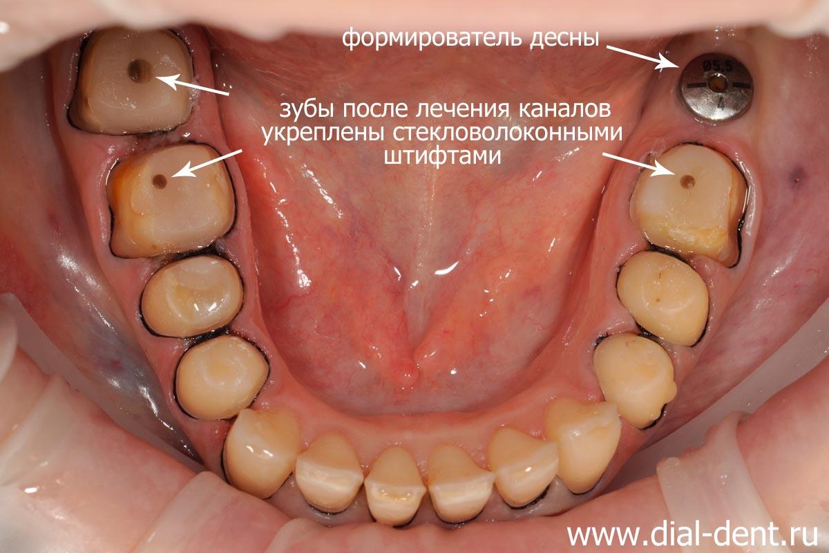 зубы после обточки под виниры фото