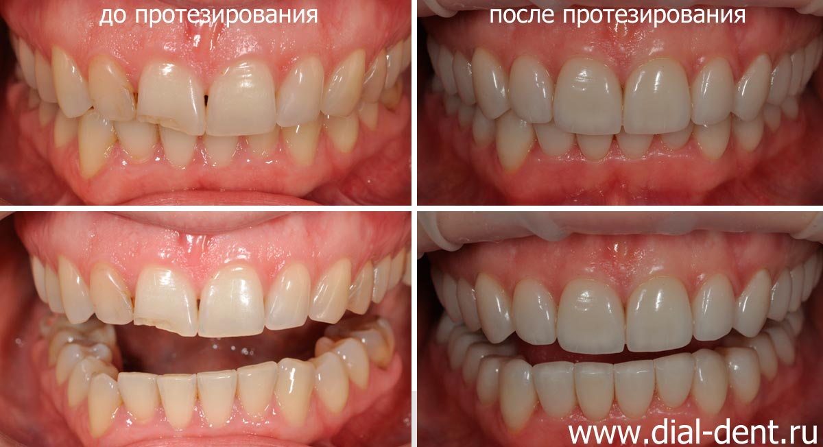 срок службы виниров на зубы
