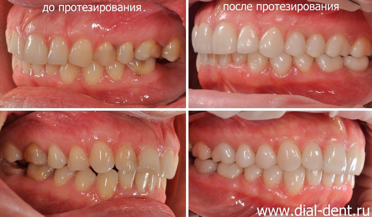 красивый цвет зубов