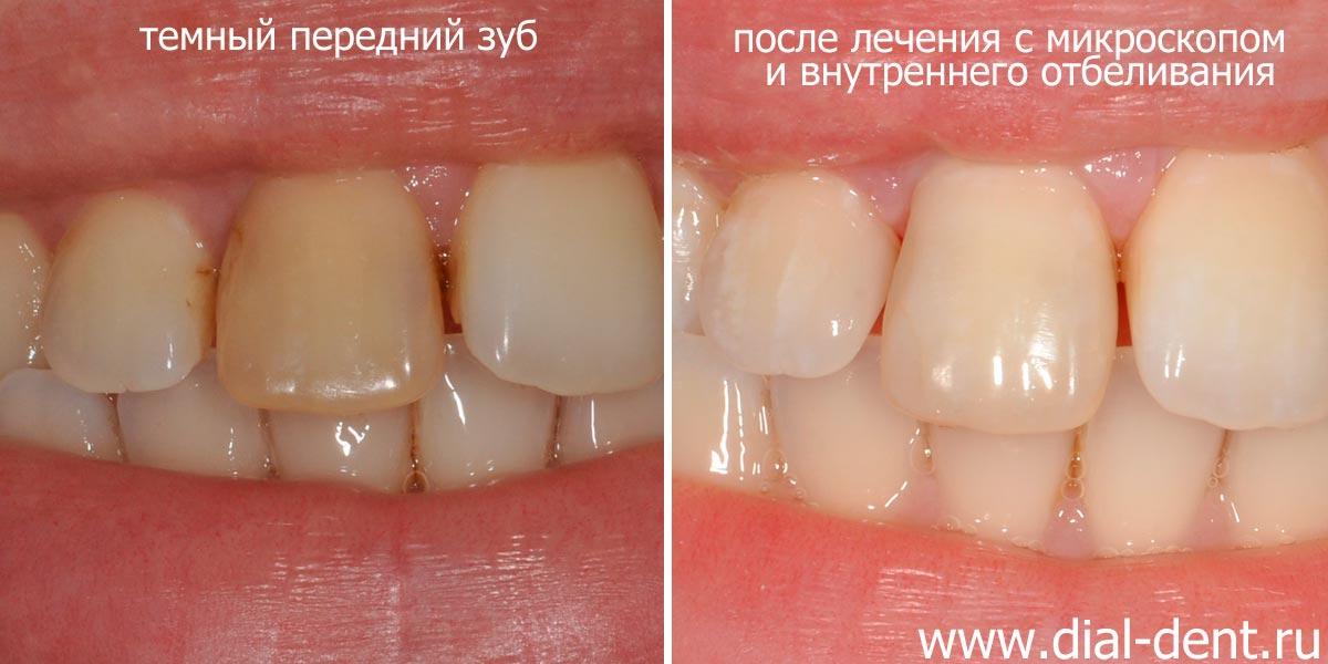 Потемнел зуб – лечение под микроскопом и внутреннее отбеливание