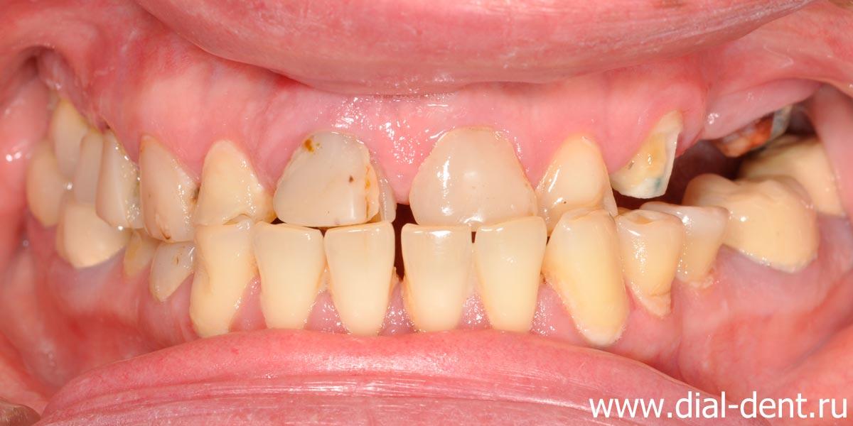 отбеливание зубов zoom отзывы фото