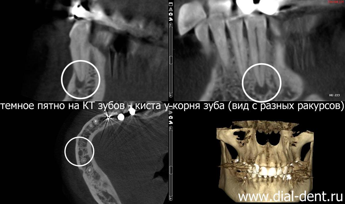 Киста зуба на рентгеновском снимке: виды рентгенологических исследований кисты зуба