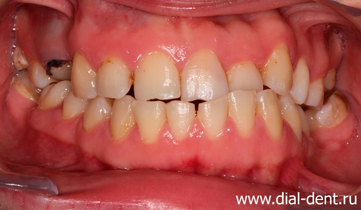 до протезирования зубов: неправильный прикус, отсутствие части зубов