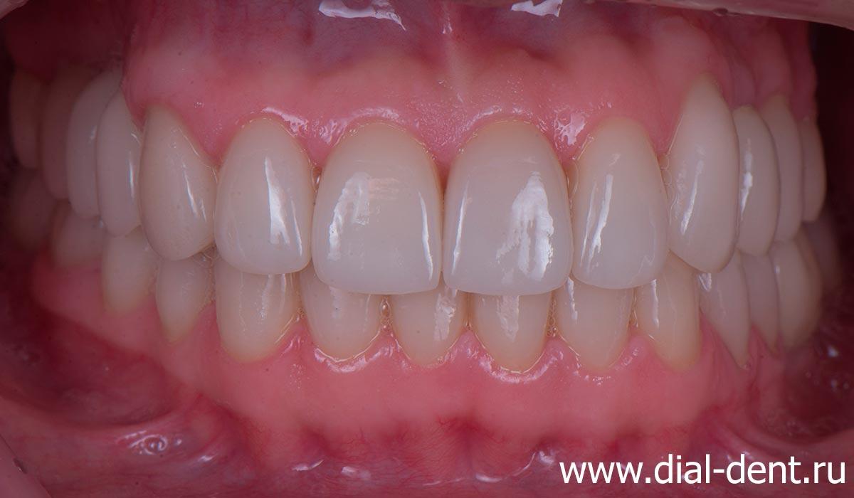выполнено протезирование всех зубов керамическими коронками (в том числе на 6 имплантах)