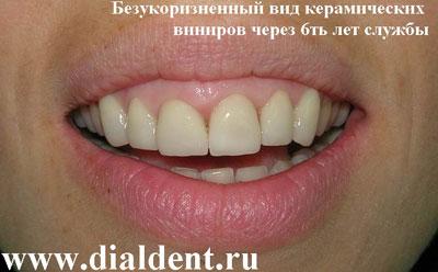 Виниры на зубы в тюмени