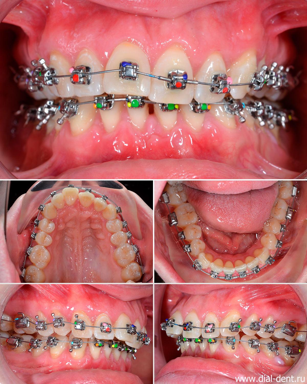 на зубы установлены брекеты Damon