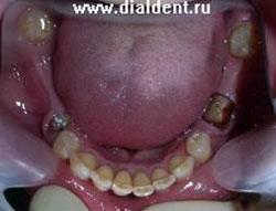 Отсутствуют все задние зубы