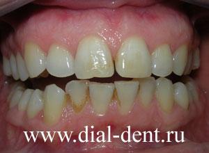 отбеливание зубов методом air flow чистка зубов
