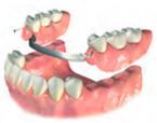 Что делать если потерял передние зубы