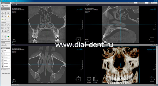 Xelis Dental-CDViewer-3D