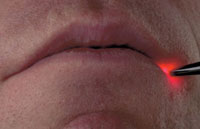 лечение герпеса на губах лазером