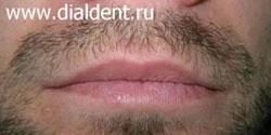 герпес на губах лечение лазером