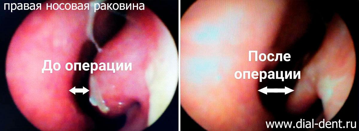 вазомоторный ринит лечение - прижигание слизистой носа