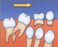 потеря молочных зубов и смещение моляров