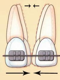 корпусное перемещение зубов