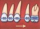 перемещение клыка к жевательным зубам