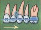 смещение зубов внутрь