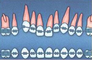 установлены брекеты для исправления положения зубов