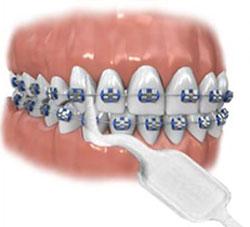 ершик для чистки зубов под брекетами