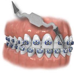 ершик для чистки зубов с брекетами