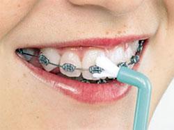 монощетка для чистки зубов с брекетами
