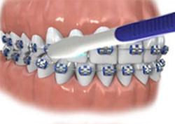 щетка для чистки зубов с брекетами