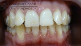 скученность зубов, выступающие передние зубы
