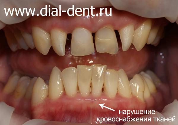 мелкое преддверие рта провоцирует развитие пародонтита