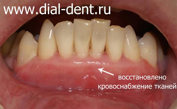 после пластики уздечки и коррекции преддверия рта лазером