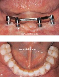 Как прикрепить протез если нет зубов
